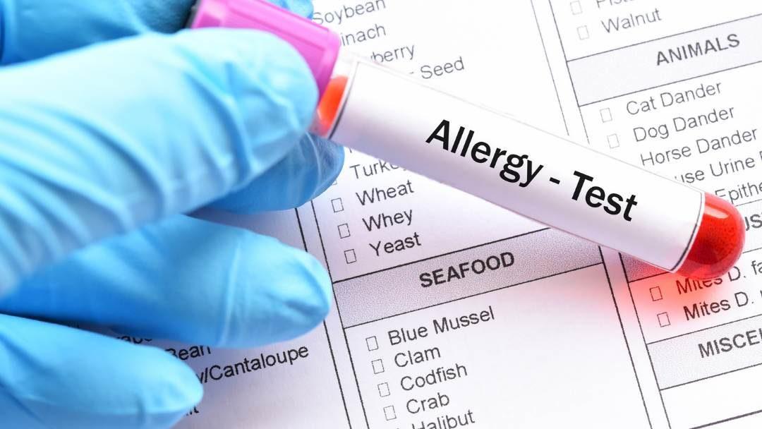 Diagnóstico de alergias alimentarias